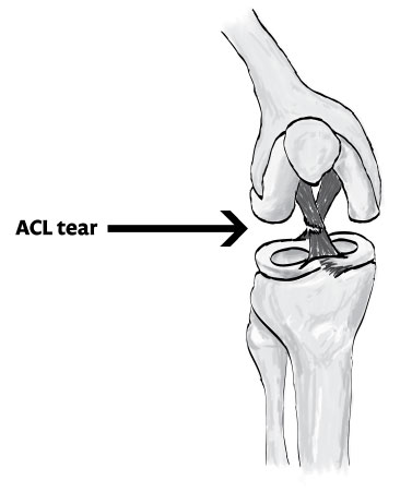 Explaining injuries: ACL tears