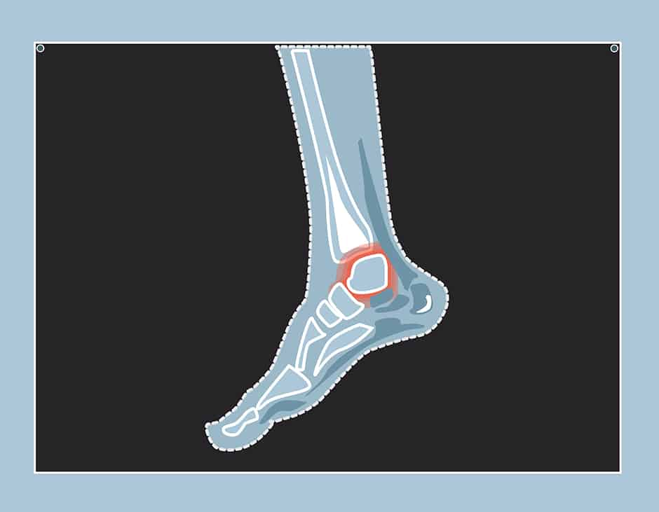 Explaining injuries: sprained ankle